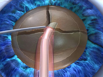水晶体核分割