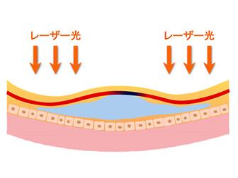 レーザー治療(網膜光凝固術)