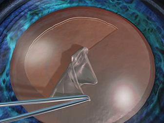 水晶体前嚢切開(CCC)