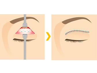 腱膜性眼瞼下垂症