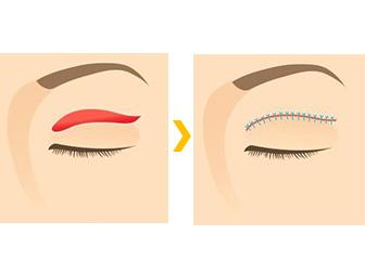 眼瞼皮膚弛緩症