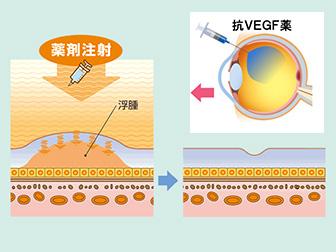 硝子体内注射(抗血管新生薬療法)