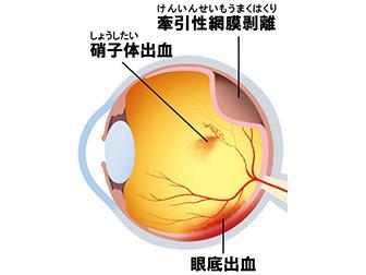 糖尿病網膜症の眼底